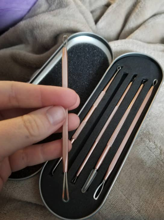 case of blackhead tools that look like metal sticks with differently shaped loops on each end. A reviewer's hand is holding one from the case.