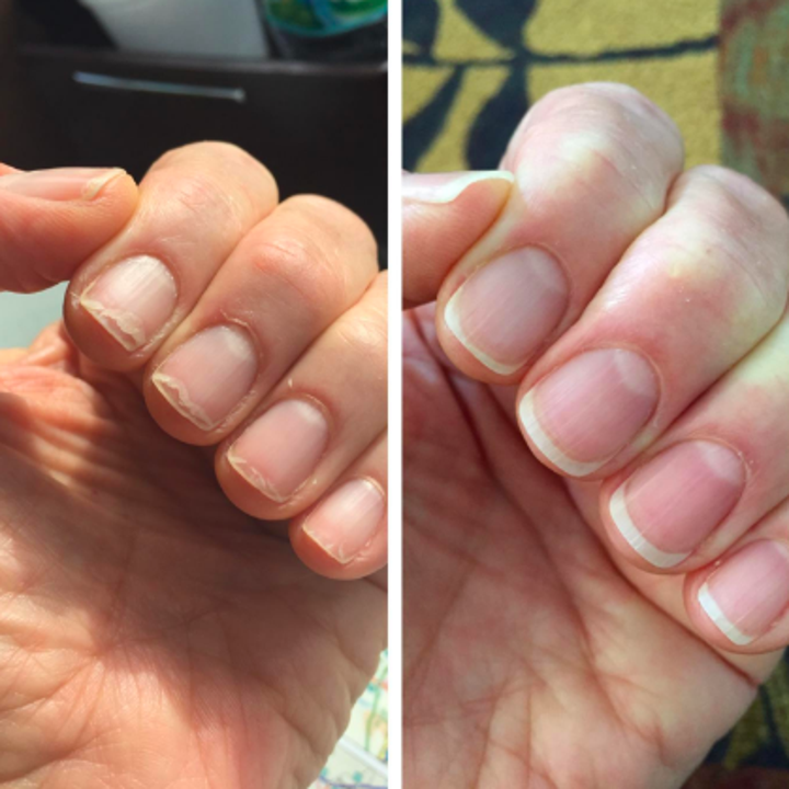 Reviewer with severely chipped, weak nails stronger and healthier after use