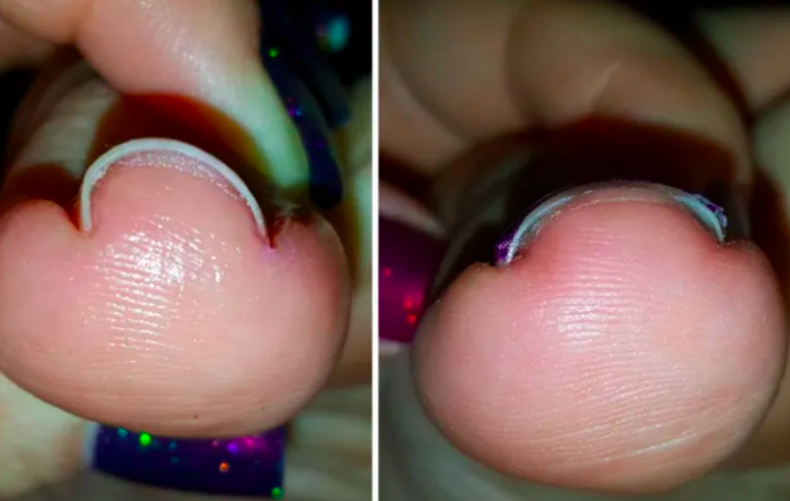 U-curved toenail cutting deep into skin elongated and leveled after using brace