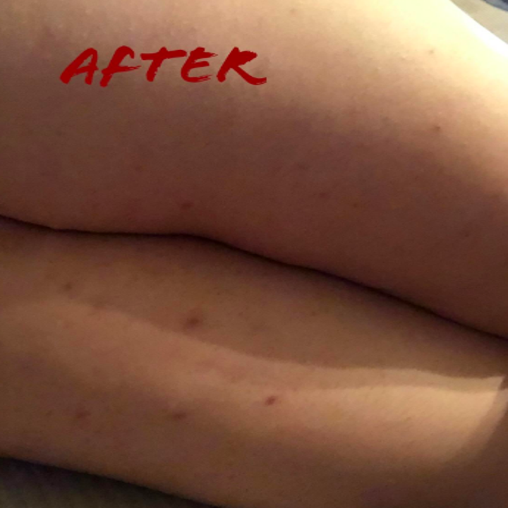 The same legs without the redness or excessive bumps, with a few minor dark scars left