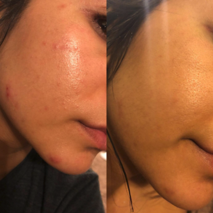 a reviewer showing a before and after of their skin looking more clear