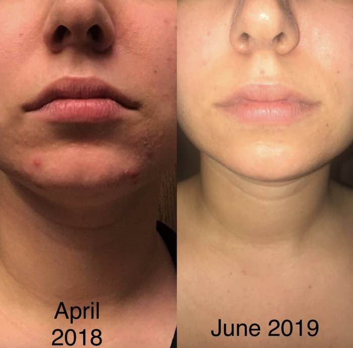 a reviewer's before and after photos showing how nice their skin looks after using the product for two months