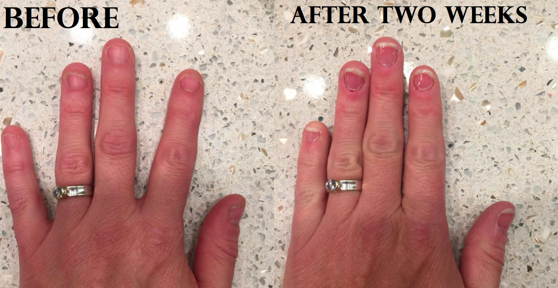 a reviewer's nails before and after using the product
