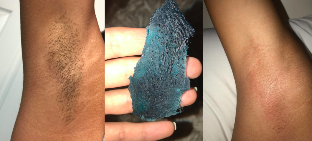 Reviewer's before and after of hairy armpit, the hair-covered wax strip, and then bare armpit