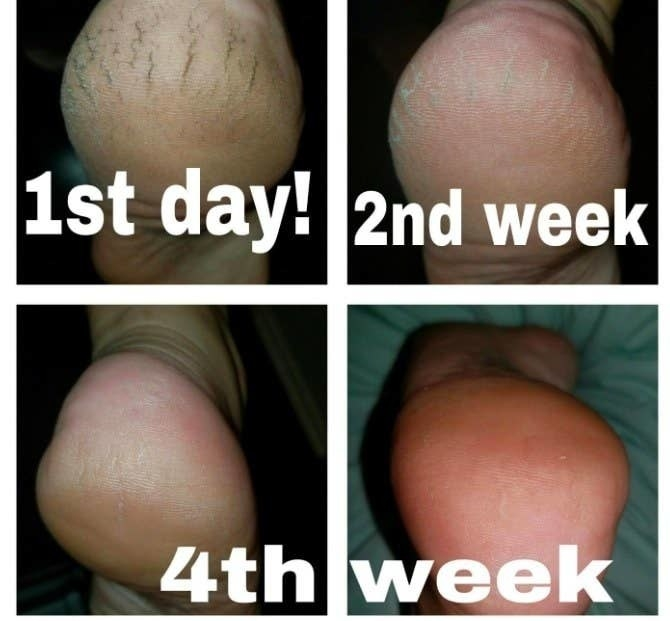 A series of photos showing a reviewer's cracked foot looking smooth after using the cream