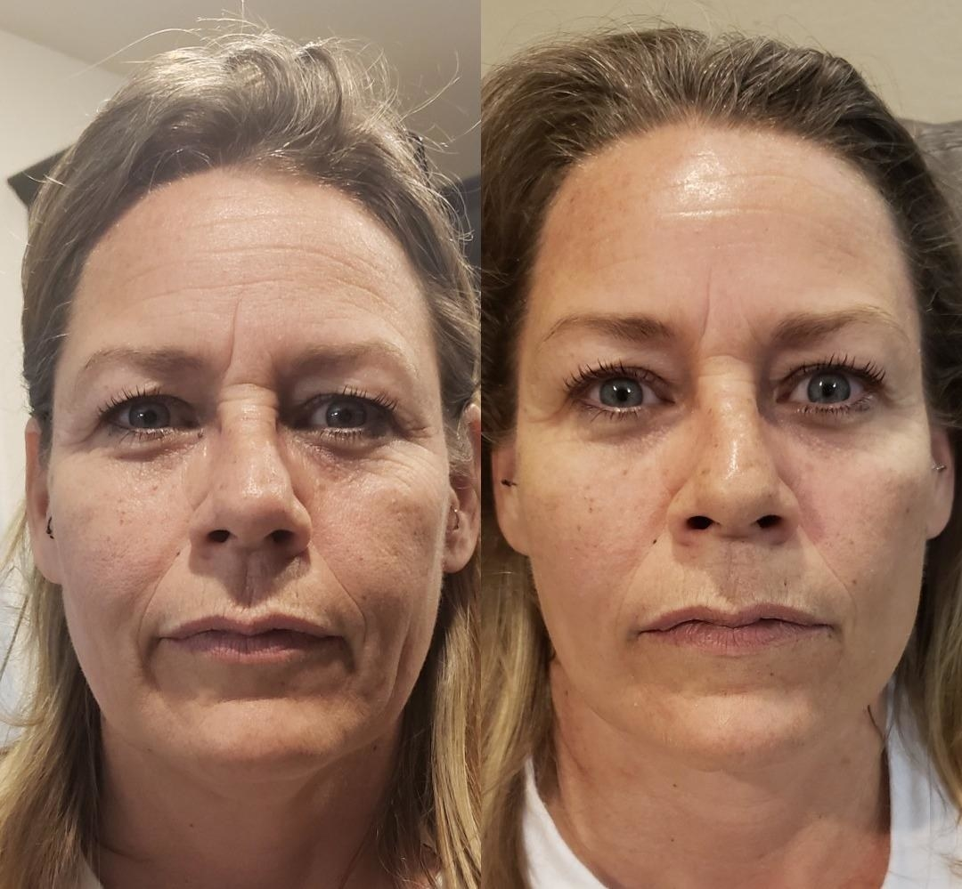 reviewer with some visible wrinkles and dry looking skin, then the same reviewer with skin looking much more moisturized and plumped up