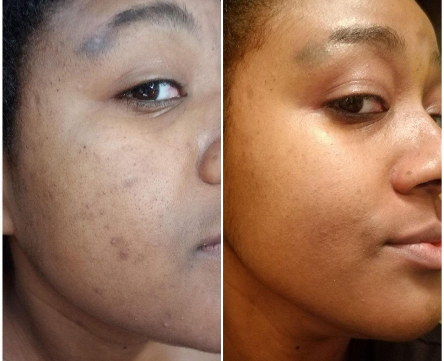 A split photo of a face with some breakouts and the same face with the breakouts gone.