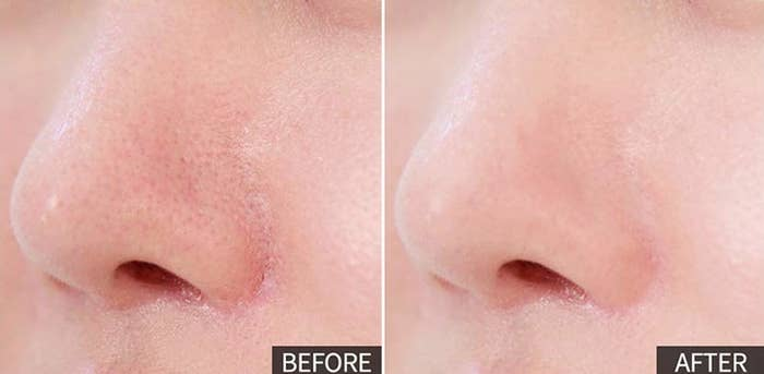 pic of person's nose with visible pores and blackhead, then same nose without those pores visible thanks to the primer