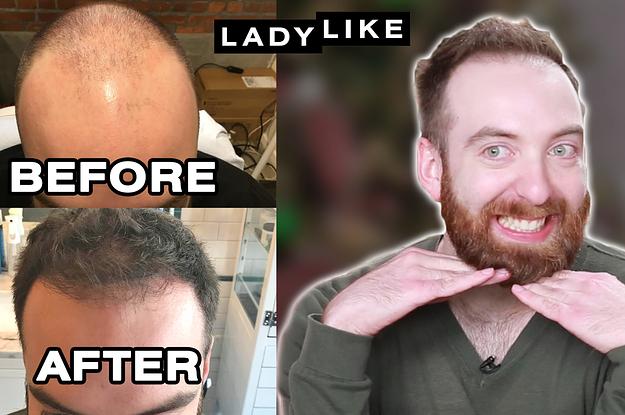 Here's What Hair Looks Like One Year ...