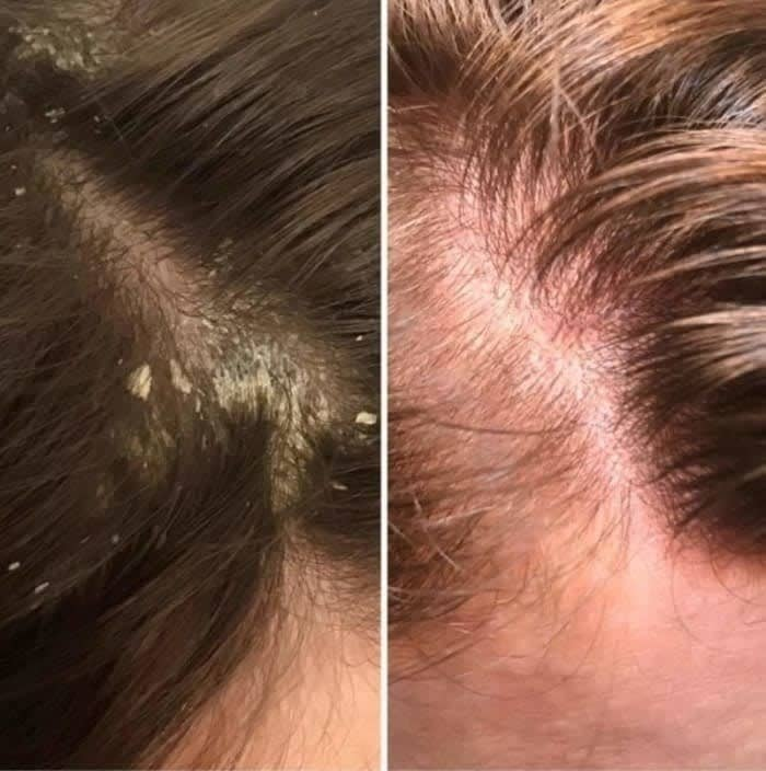 on the left a reviewer's scalp with a lot of dandruff, on the right the same scalp with no dandruff