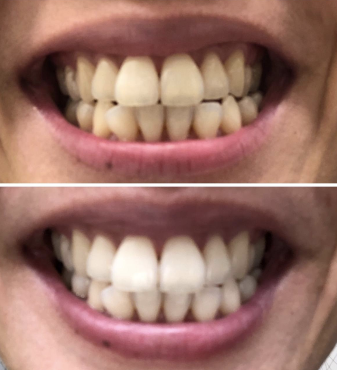 on top a reviewer's slightly yellow teeth, on the bottom the same teeth a bit whiter