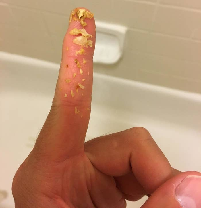 Reviewer photo of their finger covered in chunks of ear wax