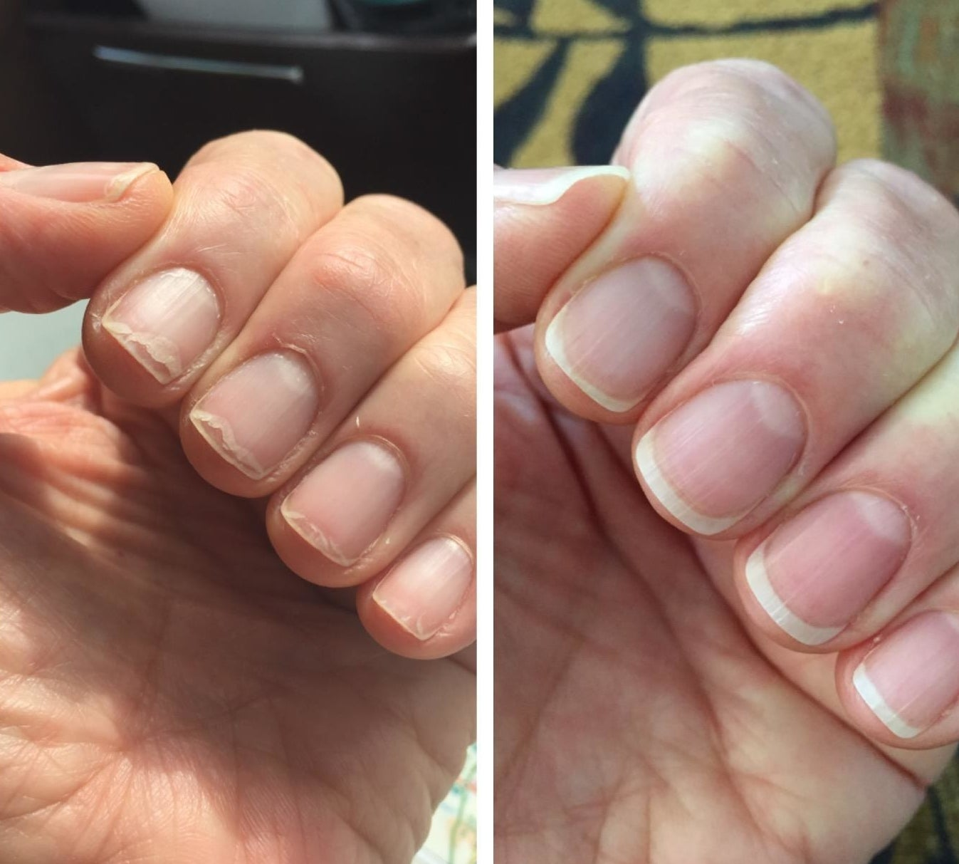 A split reviewer image showing a hand with brittle, chipped nails and dry cuticles on the left, and the same hand with healthy-looking nails and cuticle on the right