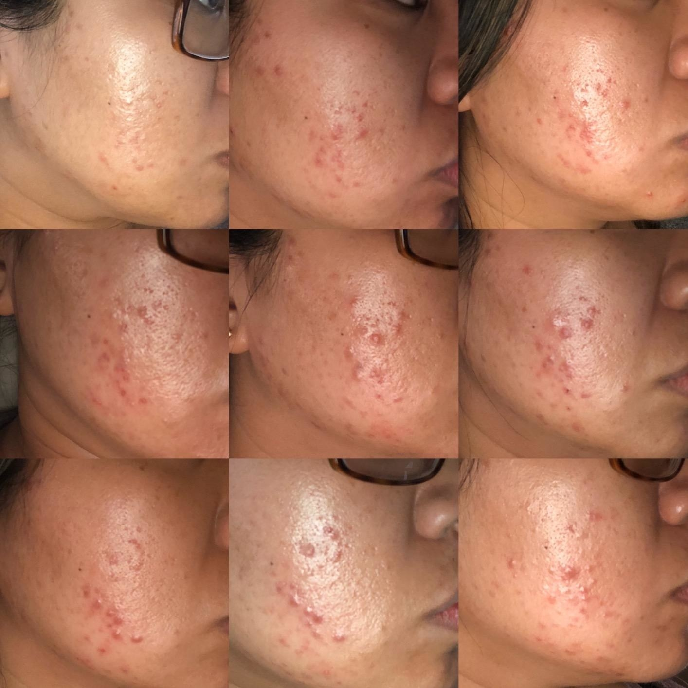 Reviewer progression photos of their acne slowly fading over time thanks to the gel