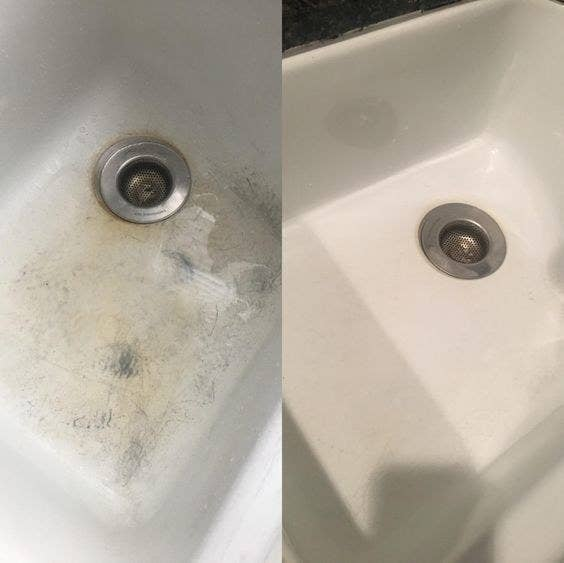 Split before-and-after photo of a white enamel sink showing silver stains and discoloration on the left side and the stains being gone on the right side.