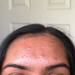 a reviewer's oil forehead