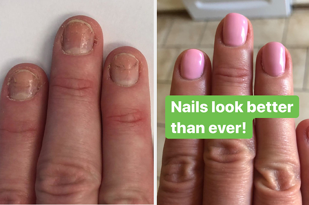 These 32 Products Have Wild Before-And-After Photos And Are Under $25