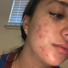 A reviewer with acne on their cheeks and chin