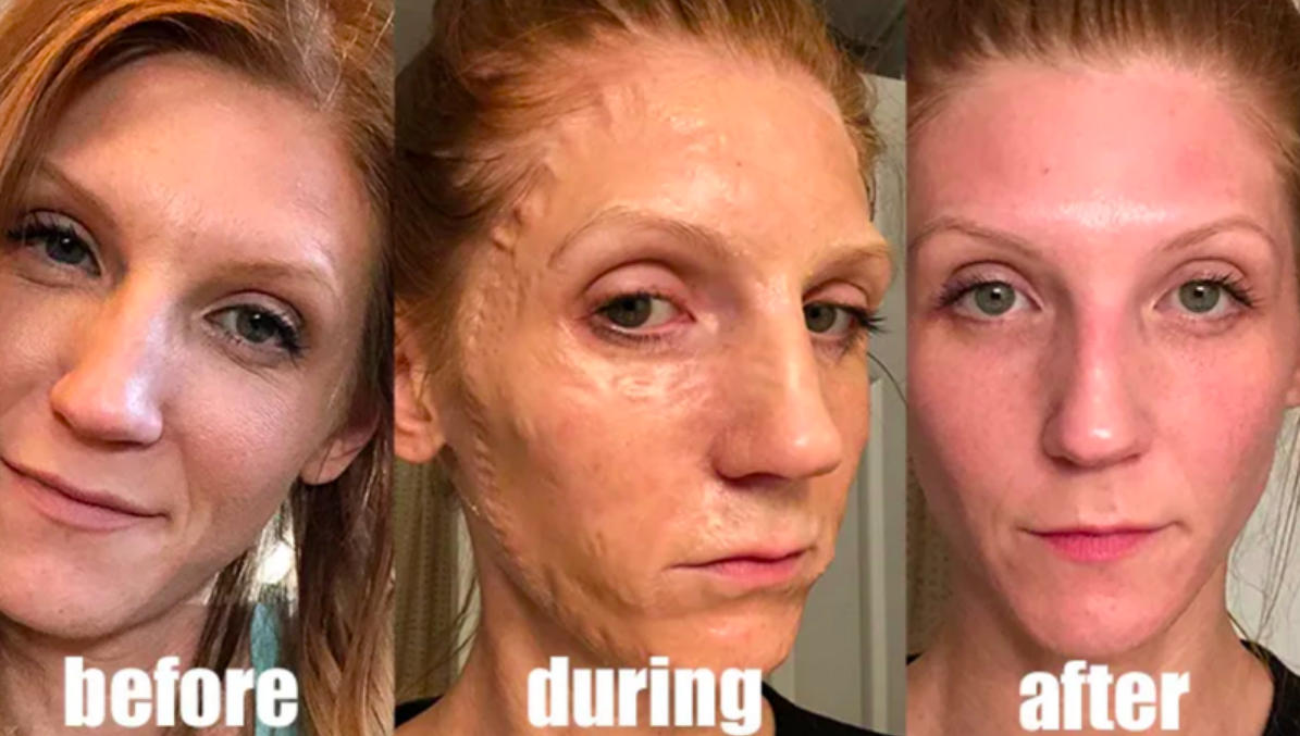 Reviewer showing before, during with skin that looks wrinkled and peeling, and clean face after use