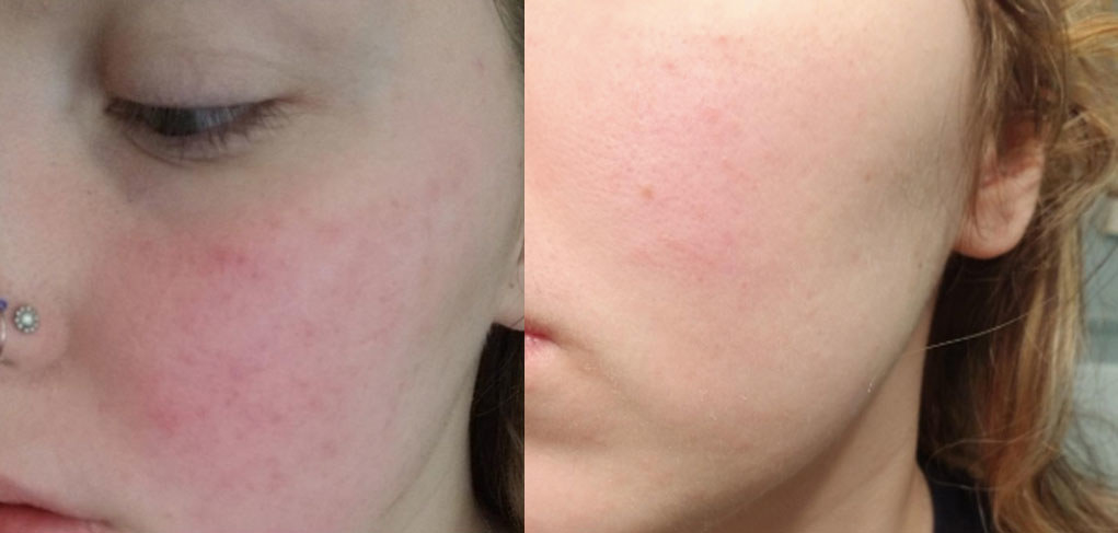 reviewer pic of red checks, then after pic with way less red on cheeks