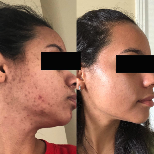 before/after of reviewer face with less scarring and acne after using serum