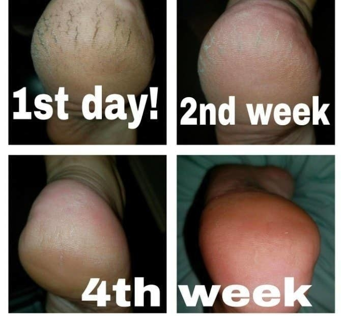 person's cracked painful looking heal, then it looking better after second week, then normal after fourth week of use