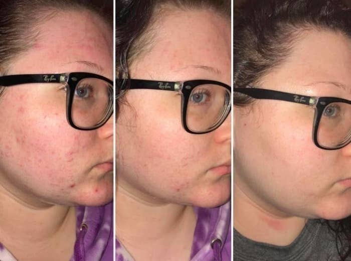 reviewer pic of cheek with painful looking breakouts, then with the same cheek healing up, then the same cheek completely clear