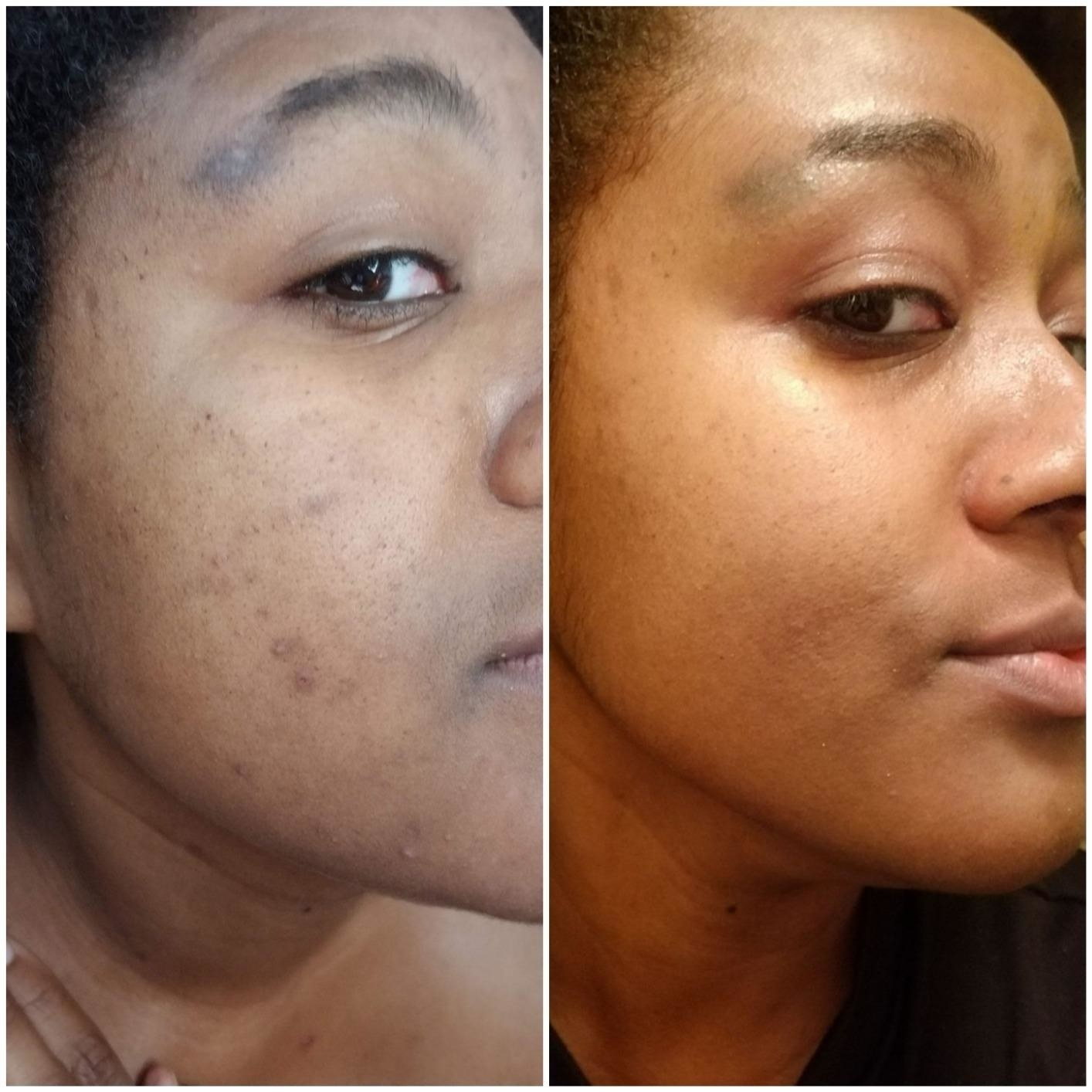on the left, a person with blemishes and on the right the same person with fewer blemishes