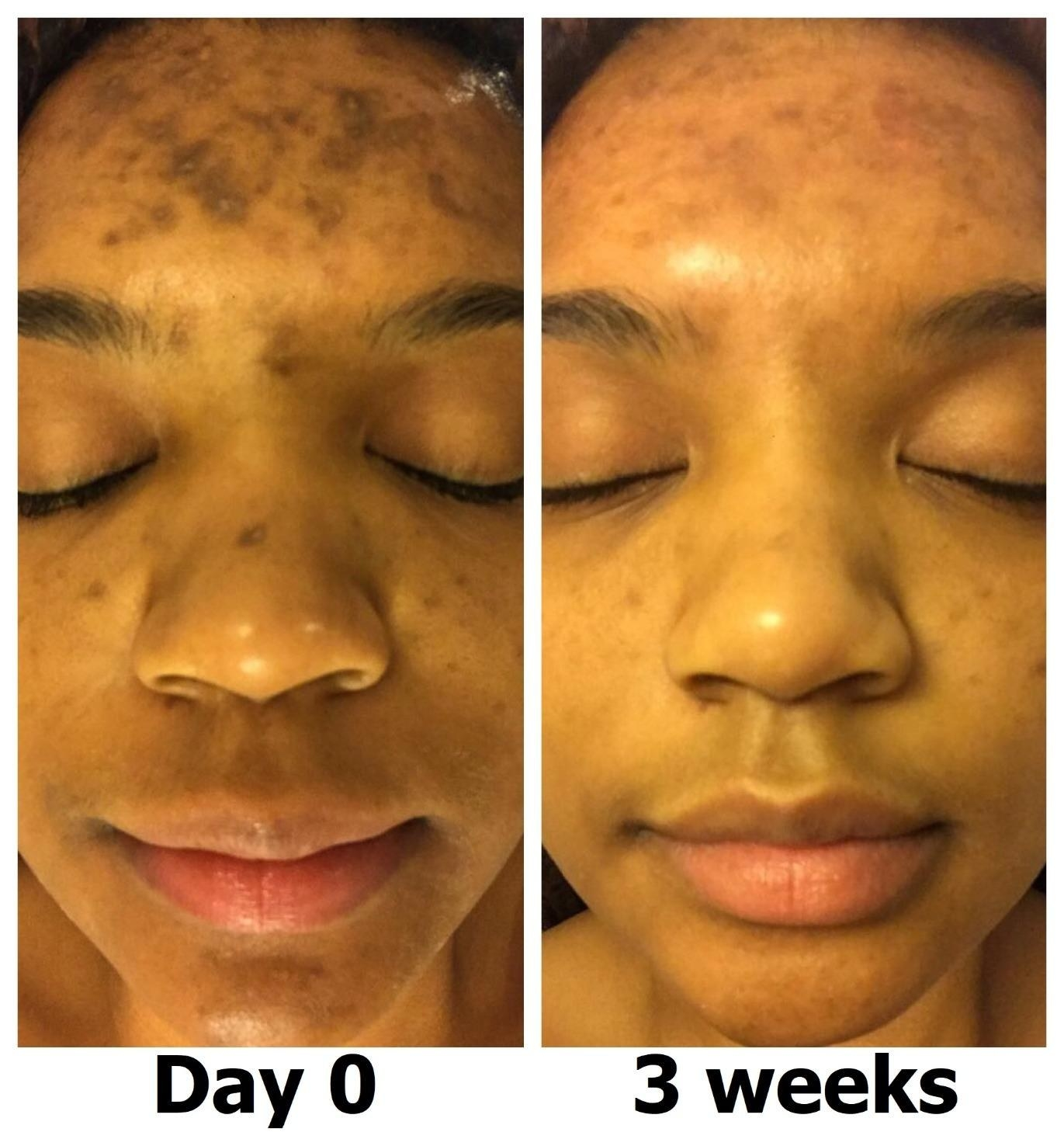 Reviewer's progression photos showing the product dramatically reduced their dark spots in three weeks