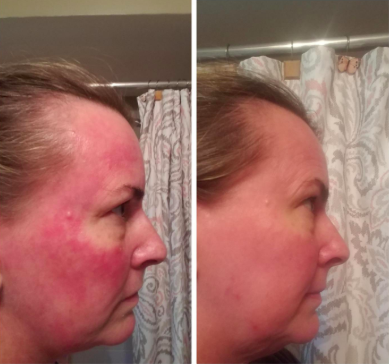 reviewer pic of very blotchy painful looking rosacea all over the face, then an after pic of the red irritation looking much lighter