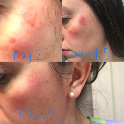 reviewer pic of bright red patch on cheek, then it's a little darker on day 4, then it's lightened up significantly and healing on day 14
