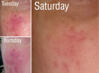 reviewer's pic of a very bright looking patch of rosacea breakout, then it lightened two days after initial treatment, then much later four days later