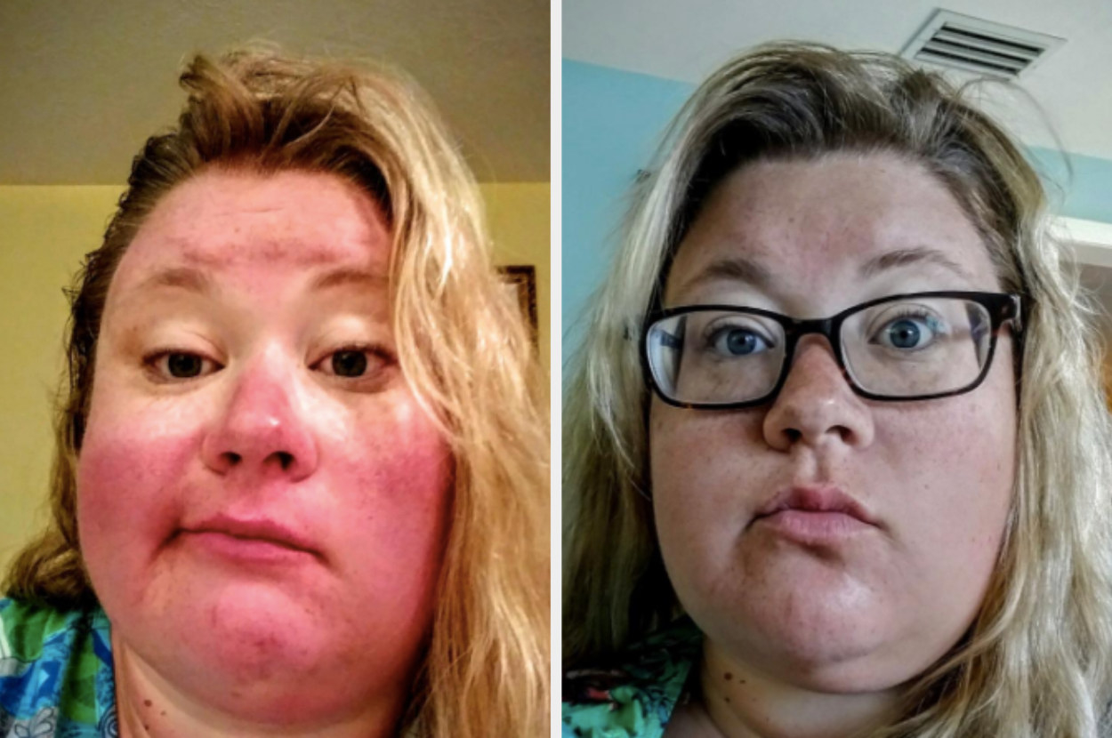 reviewer pic showing a very bad sunburn on the face then the same reviewer with makeup on and looking a bit tan rather than severely sunburned