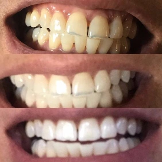 17 Teeth Whiteners That Work So Well It S Basically Magic