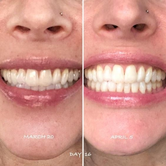 Reviewer photo showing results of using White Birch whitening toothpaste