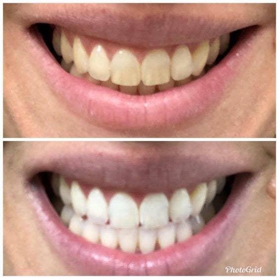 17 Teeth Whiteners That Work So Well It S Basically Magic