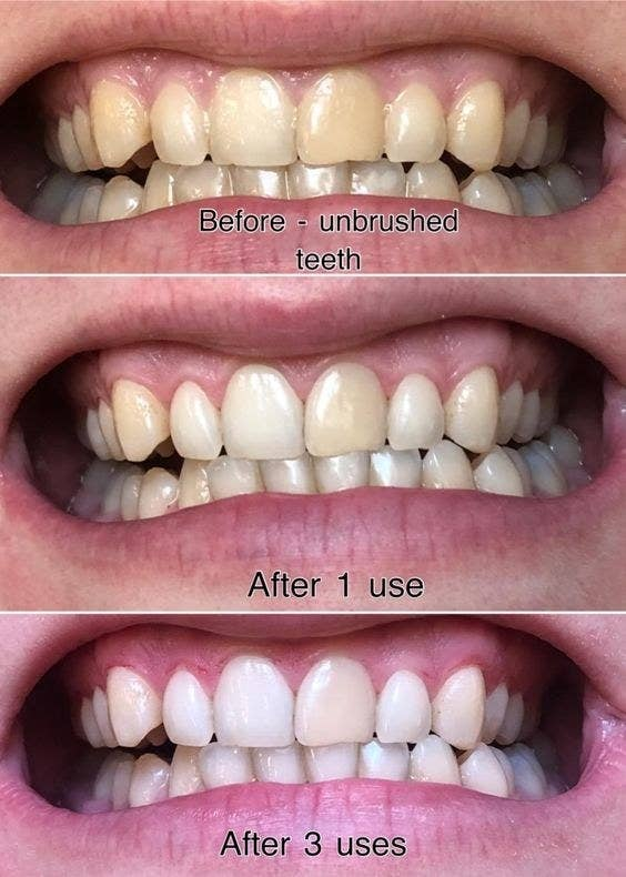 Reviewer photo showing results of using toothpaste after three uses