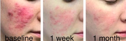 reviewer pic of extremely inflamed patch of rosacea on cheek with raised rashes, then a  lightly pink look at the same cheek a week later, then an even lighter view of the cheek a month into use