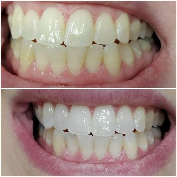 reviewer photo showing before and after using teeth whitening pen