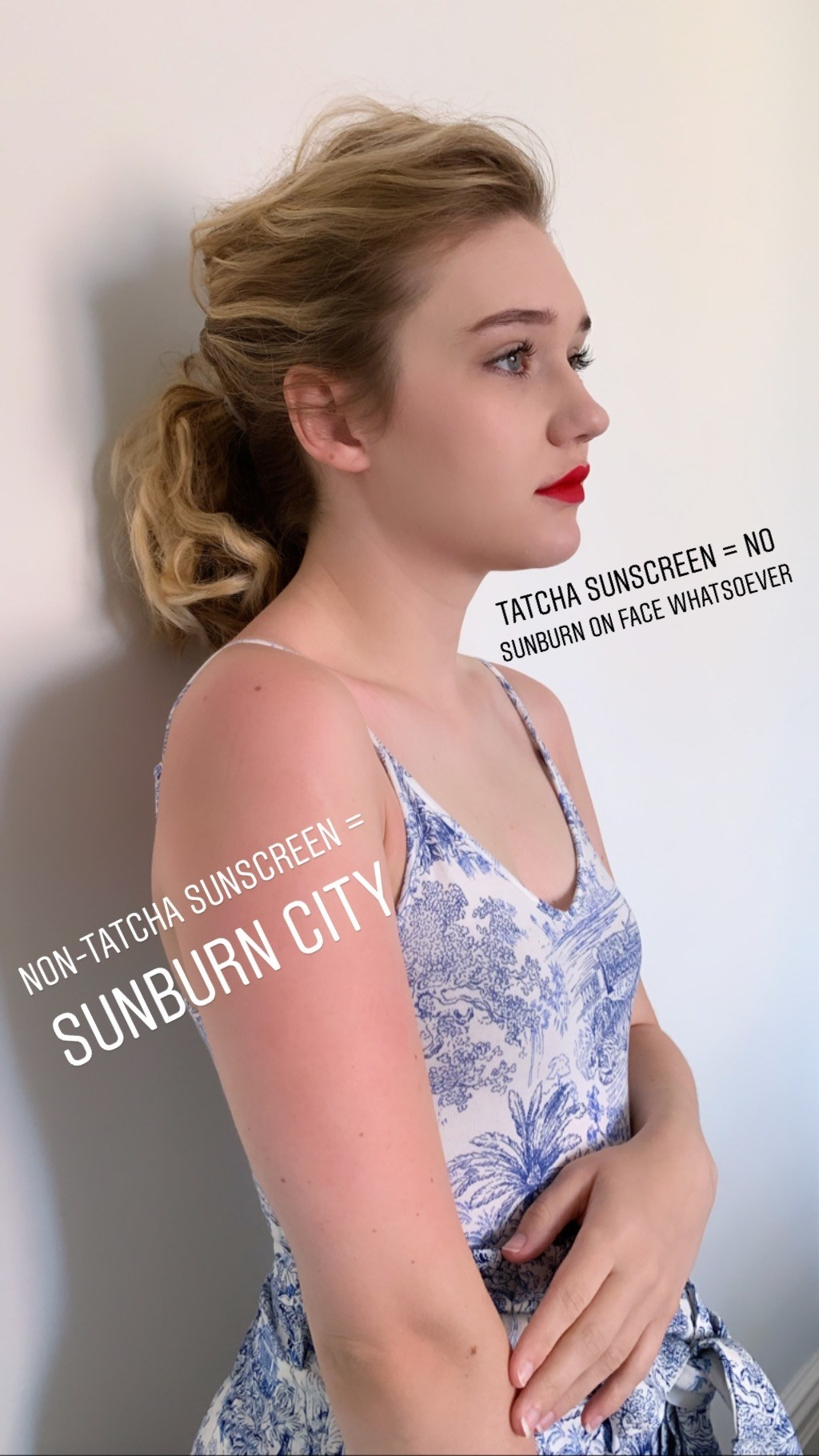 """Me, with no sunburn on my face with text """"tatcha sunscreen = no sunburn on face whatsoever"""" and with sunburned arm with text """"non-tatcha sunscreen = sunburn city"""""""
