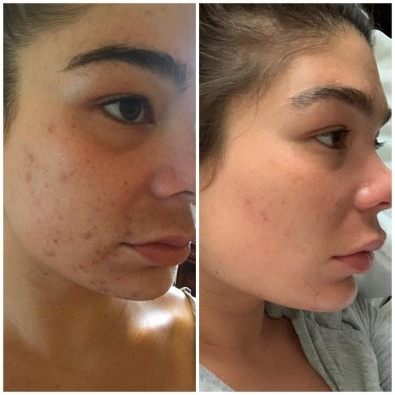 Reviewer before and after showing less severe acne