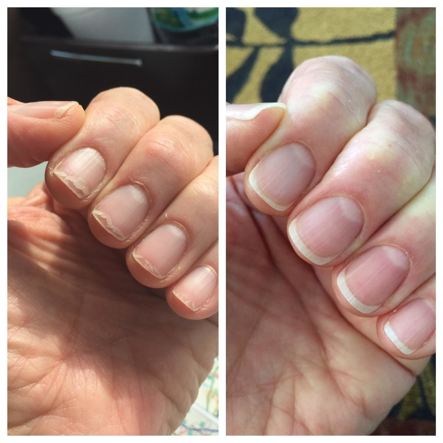 A before image of a reviewer's brittle nails and an after image of them much heaithier