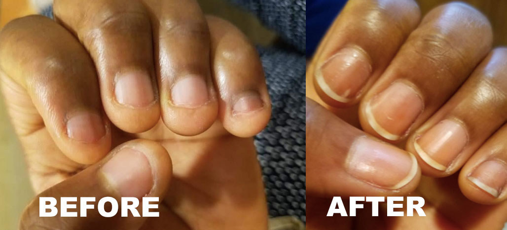 a before and after photo set displaying a reviewer's nail growth after using the clear polish