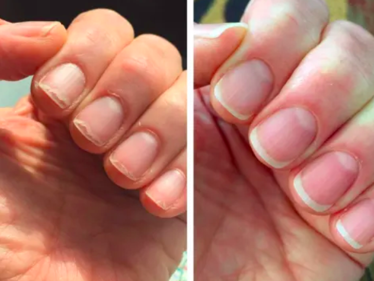 a before and after photo set displaying a reviewer's nail growth after using the solaroil