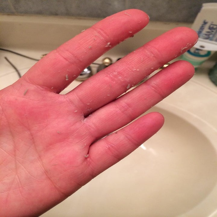 """A close-up of a hand showing the """"beads"""" of dead skin, dirt, and gunk that's pilled after using the product"""