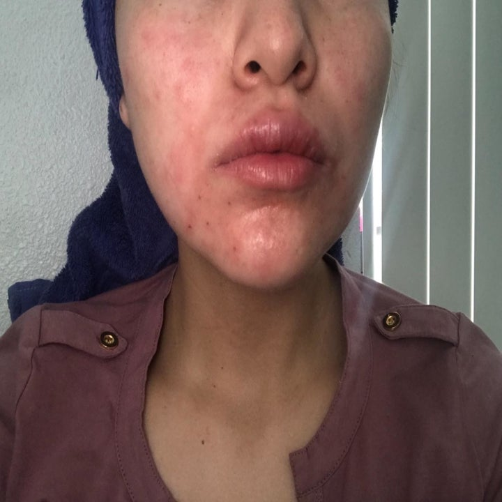 Before of reviewer with psoriasis, which is causing bright red patches of skin on their cheeks and around their mouth
