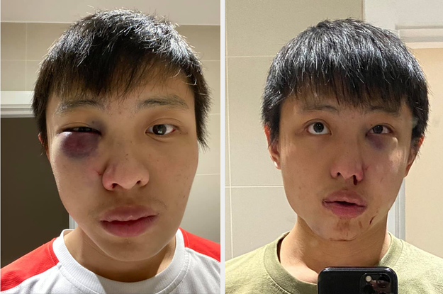 An Asian Student Said He Was Attacked On The Street Because Of Racism About The Coronavirus
