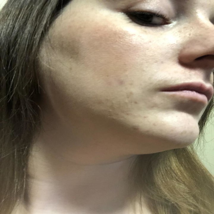 """An """"after"""" image with the redness completely gone and the acne nearly disappeared"""