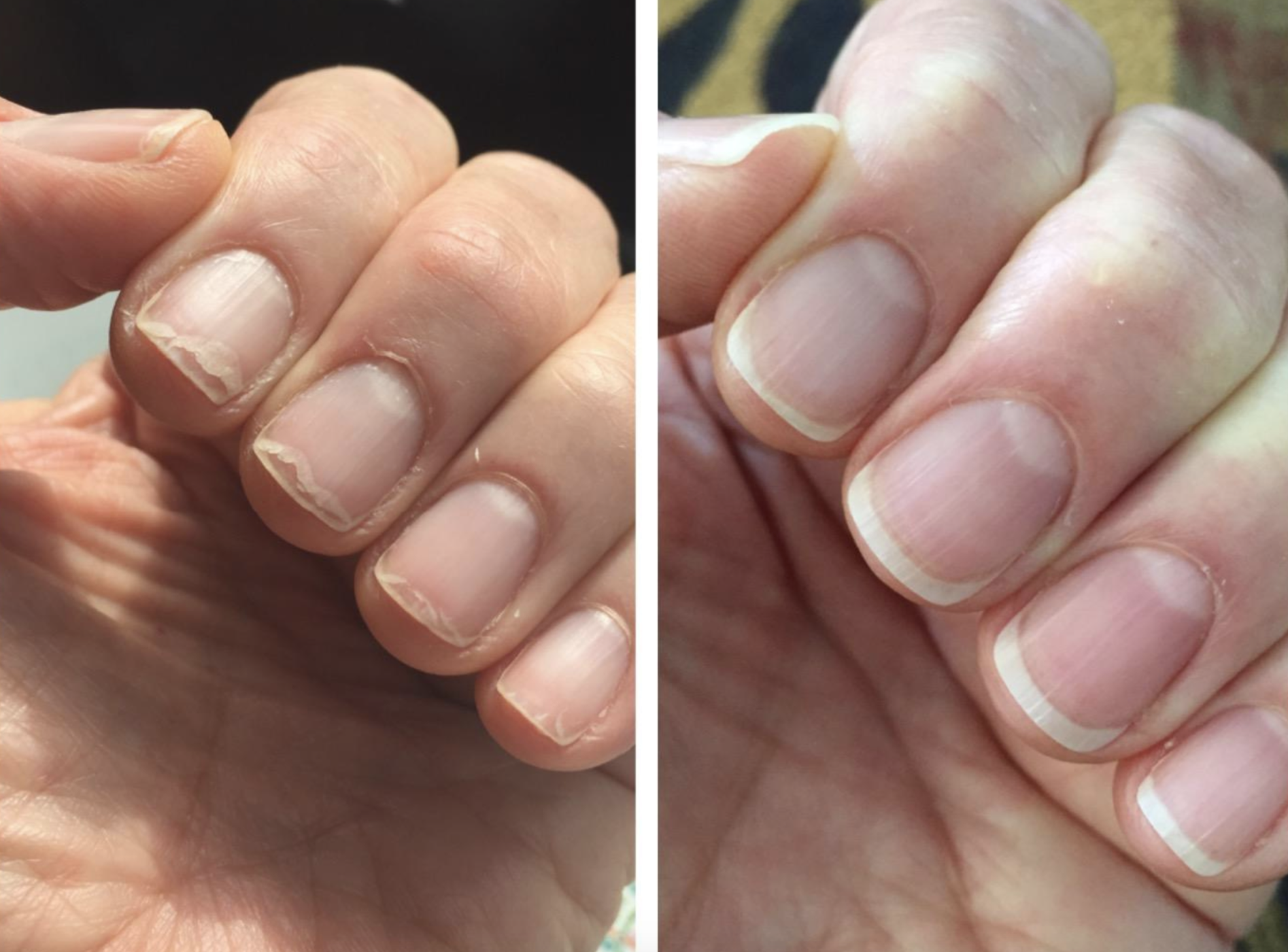 Left side shows reviewer's hand before the cuticle oil with short, peeling nails and overgrown cuticles. The left side shows the nails slightly longer with no peeling and neater cuticles.