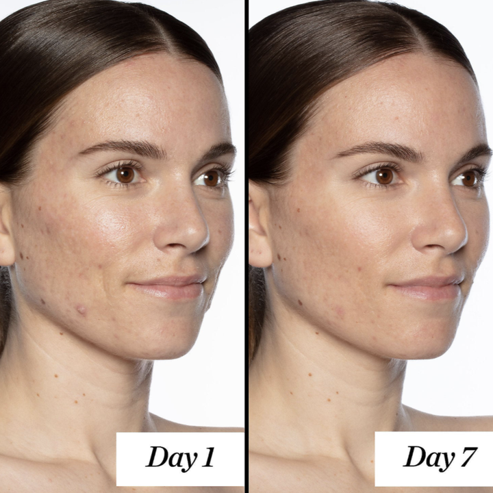 On the left, a model's face has acne and blemishes. On the right, the same model's face with less breakouts